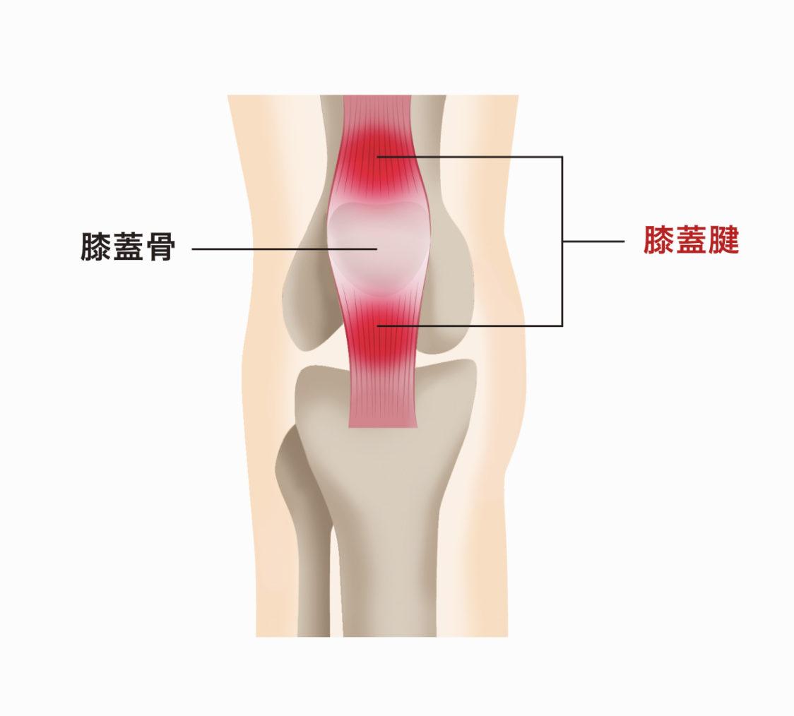 痛み 膝 スポーツ 裏 膝の裏が痛い!6つの原因や隠れている病気や対処法も紹介