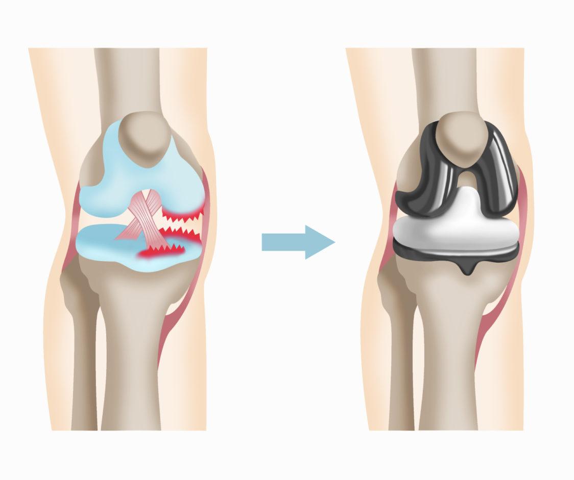 人工膝関節置換術後に激しいスポーツができない理由 | ひざ | 関節治療 ...