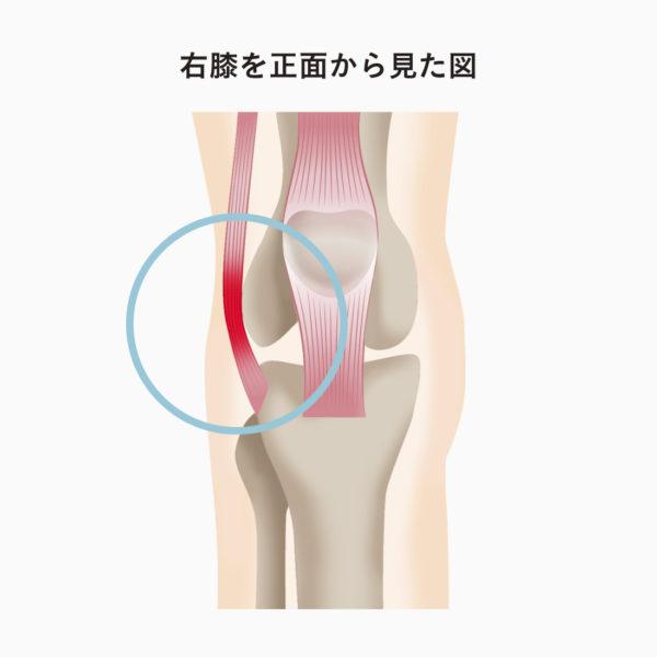 痛い 膝 の 裏