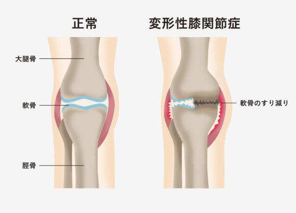 が 痛い 理由 膝